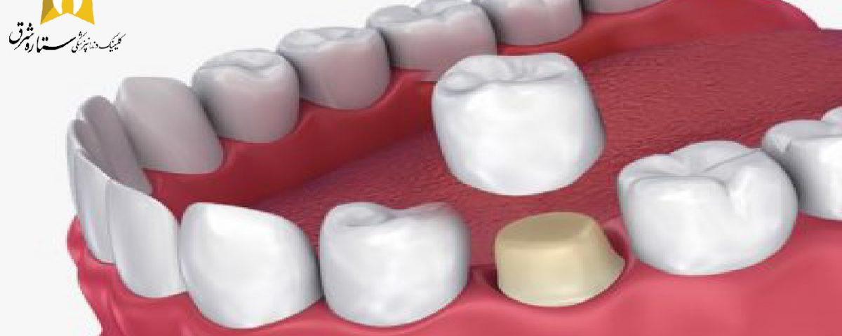 روکش و انواع پروتز های دندان