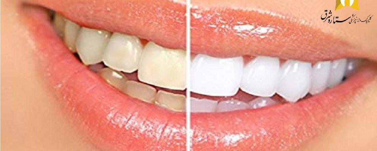 بلچینگ دندان ها