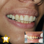ترمیم دندان با ظاهری زیبا