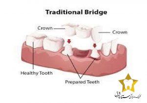 پل سنتی دندان|کلینیک دندانپزشکی ستاره شرق