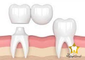 پل معلق دندان