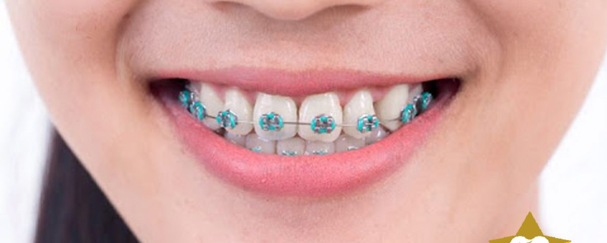 ارتودنسی در کلینیک دندانپزشکی ستاره شرق