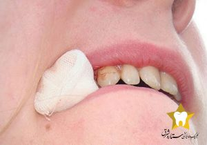 بعد از جراحی دندان