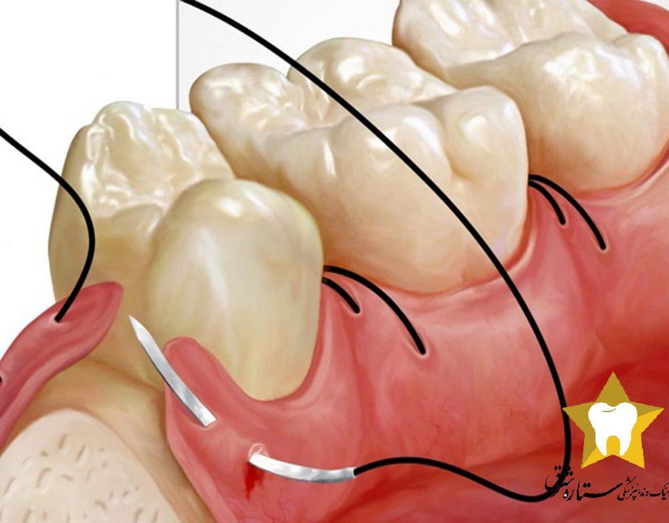 مراقبت های بعد از جراحی دندان
