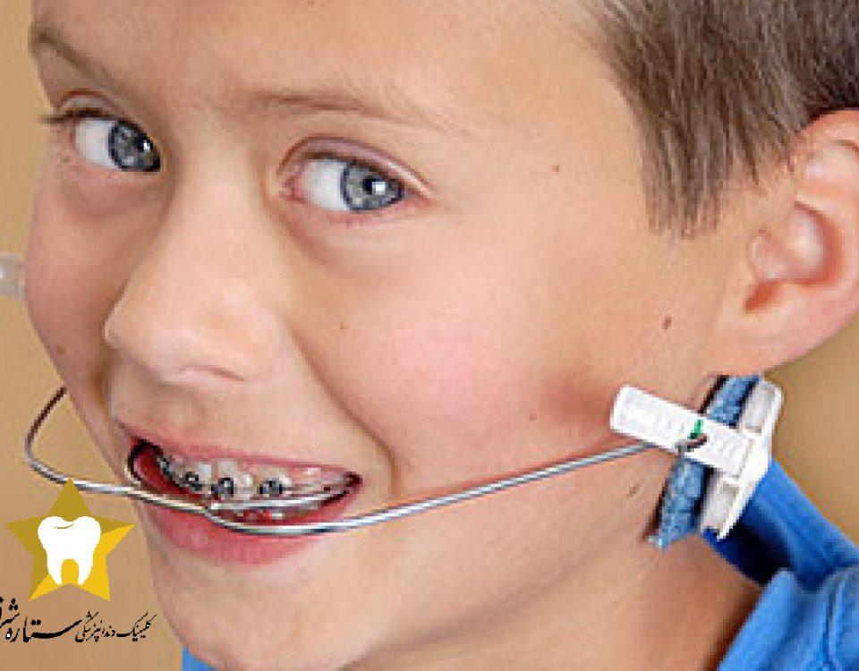 بهترین زمان ارتودنسی دندان کودکان